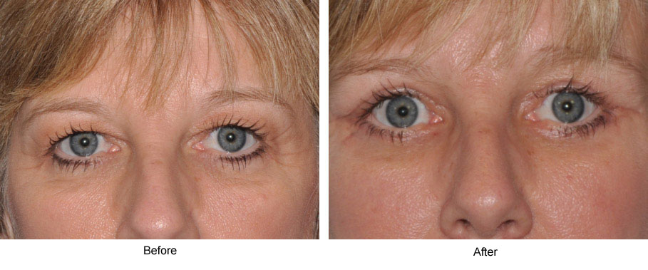 fat deposits and drooping skin on the eyelids gives the face an aged