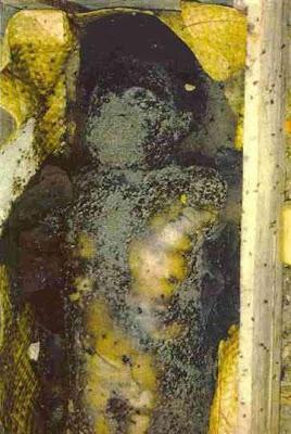 exh11 Foto Foto Penggalian Mayat Yang mengerikan