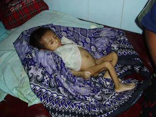 Anak korban malnutrisi akut di Sumba Barat 2005