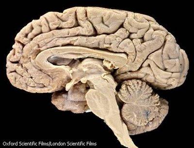 http://3.bp.blogspot.com/_dNZ6Y_z8xnY/TSNcoQxt4nI/AAAAAAAAACs/p67C7fOvDmA/s1600/otak-manusia.jpg