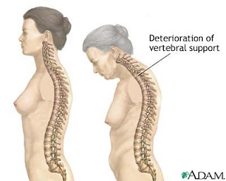 osteoporosis and Wobenzym N