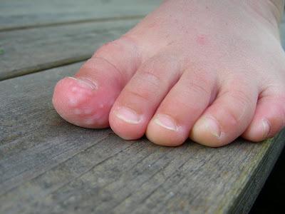 blåsor under foten svamp