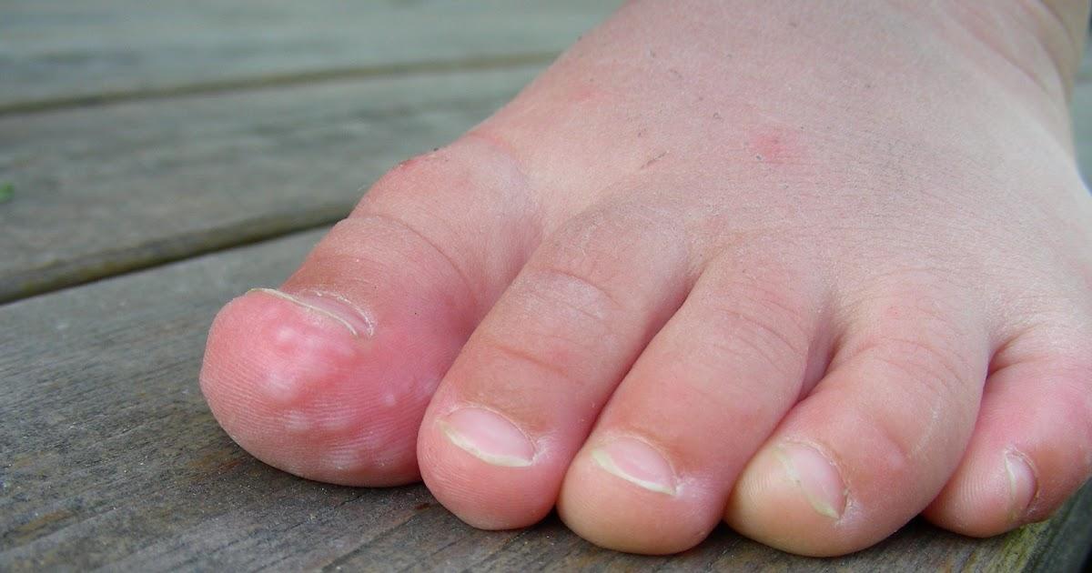 kliar på händer och fötter
