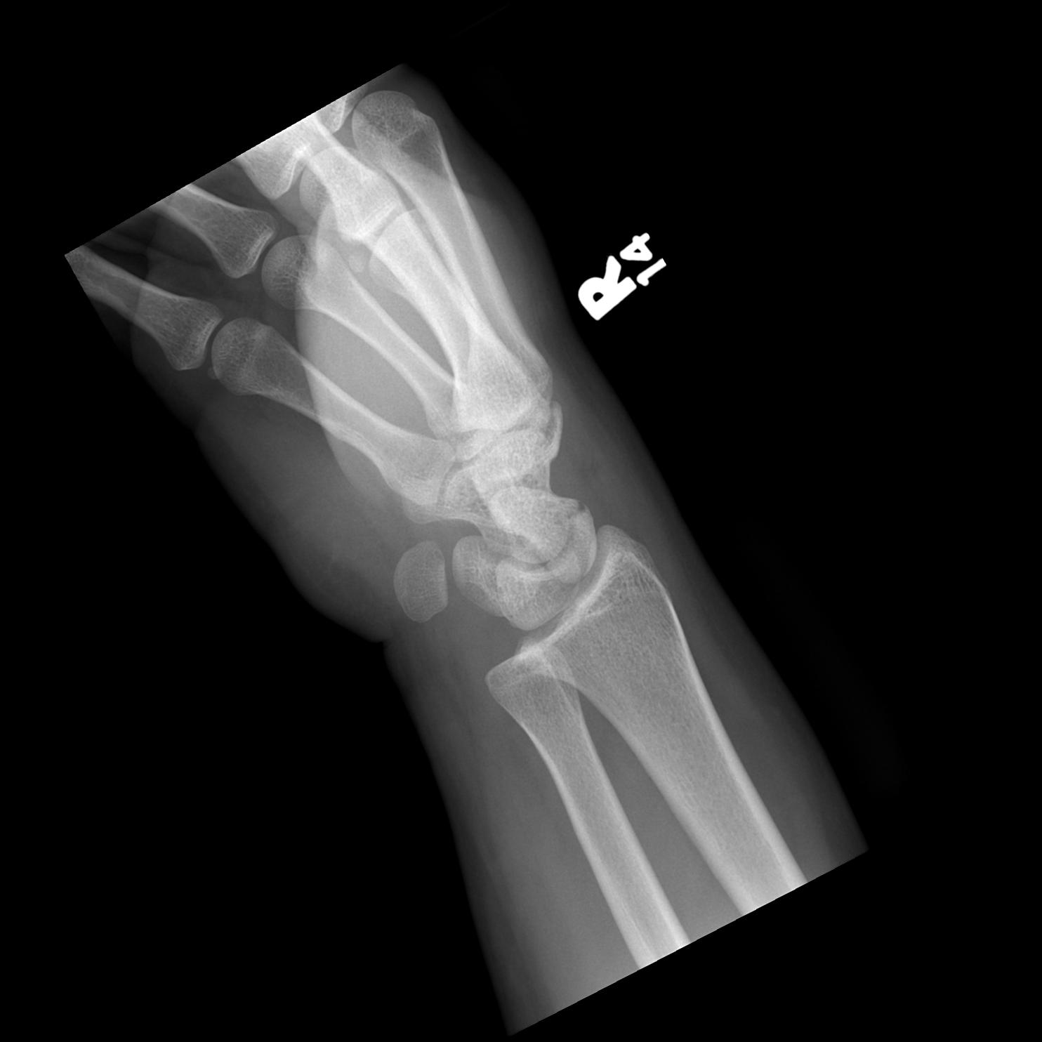 smith fracture x ray - HD1484×1484