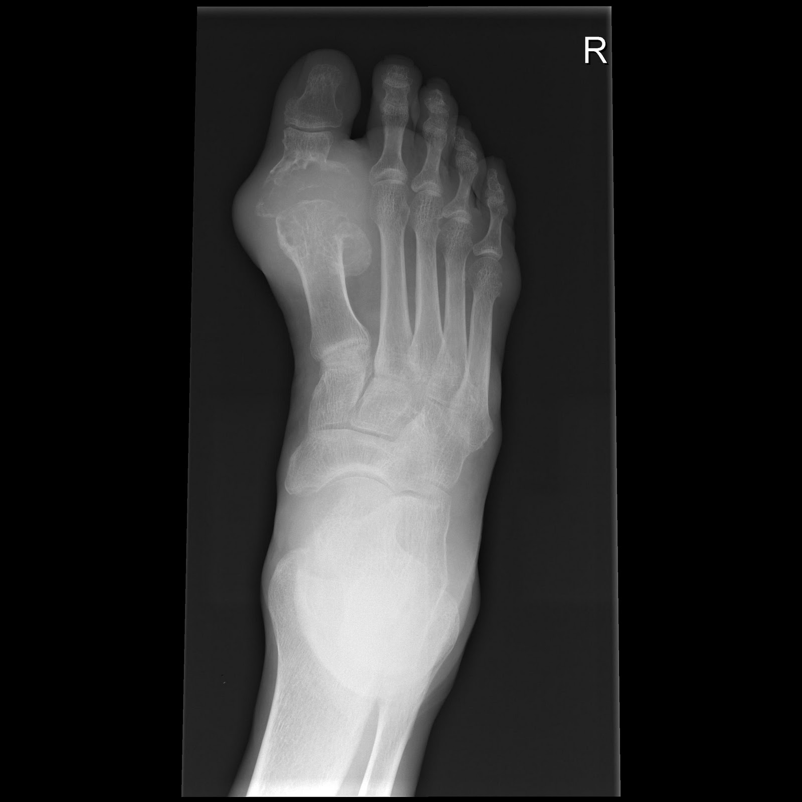 foot xray machine