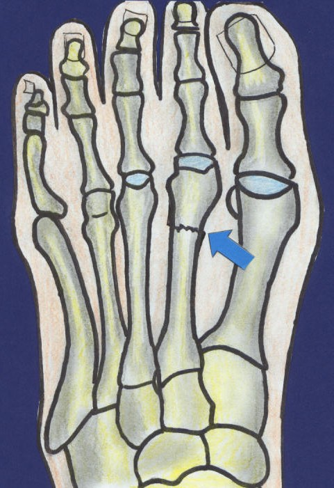 2nd Metatarsal Stress Fracture-3.bp.blogspot.com