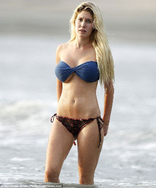 g cup breast implants  Heidi Montag