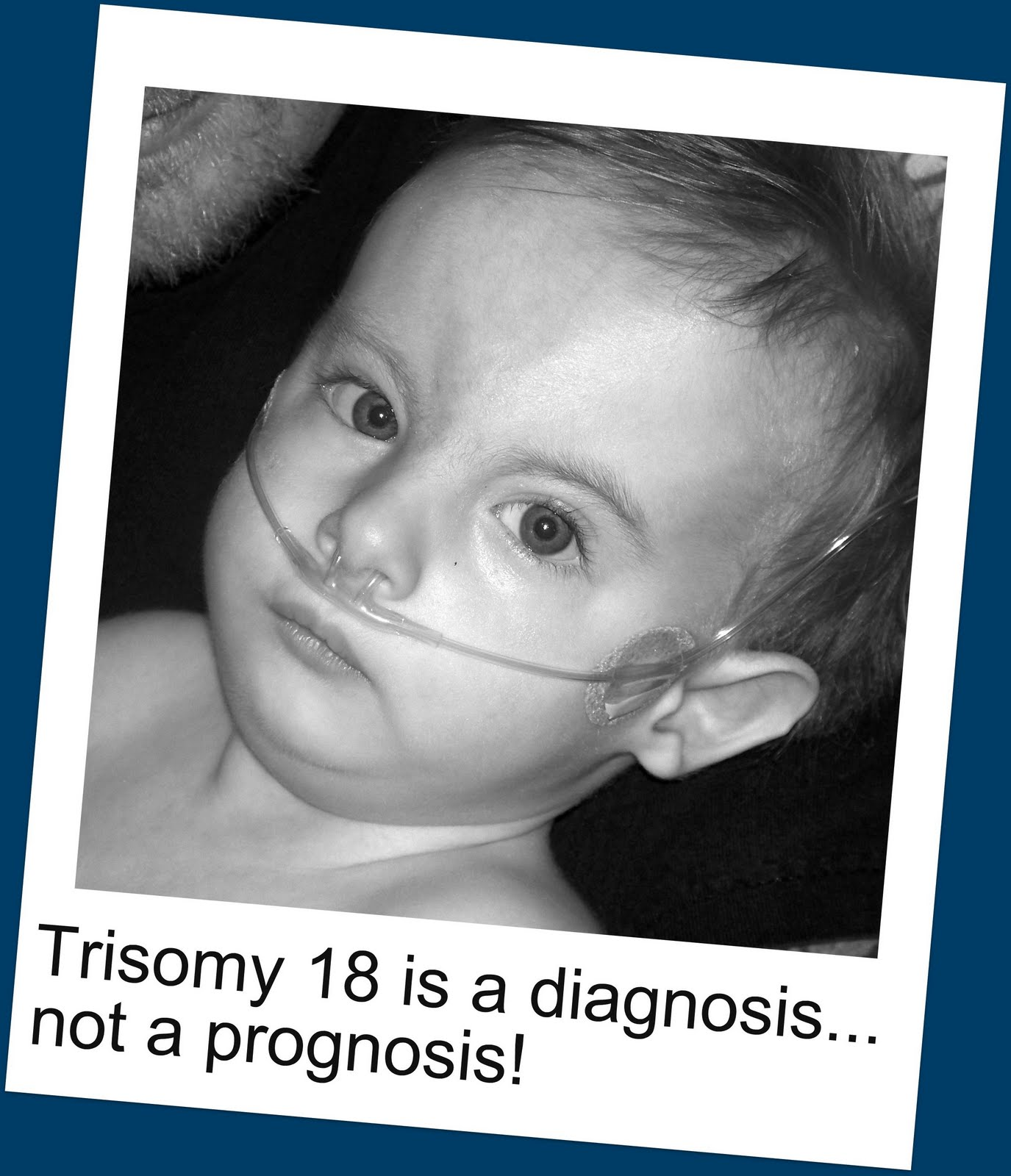 Trisomy Genetics Home Reference