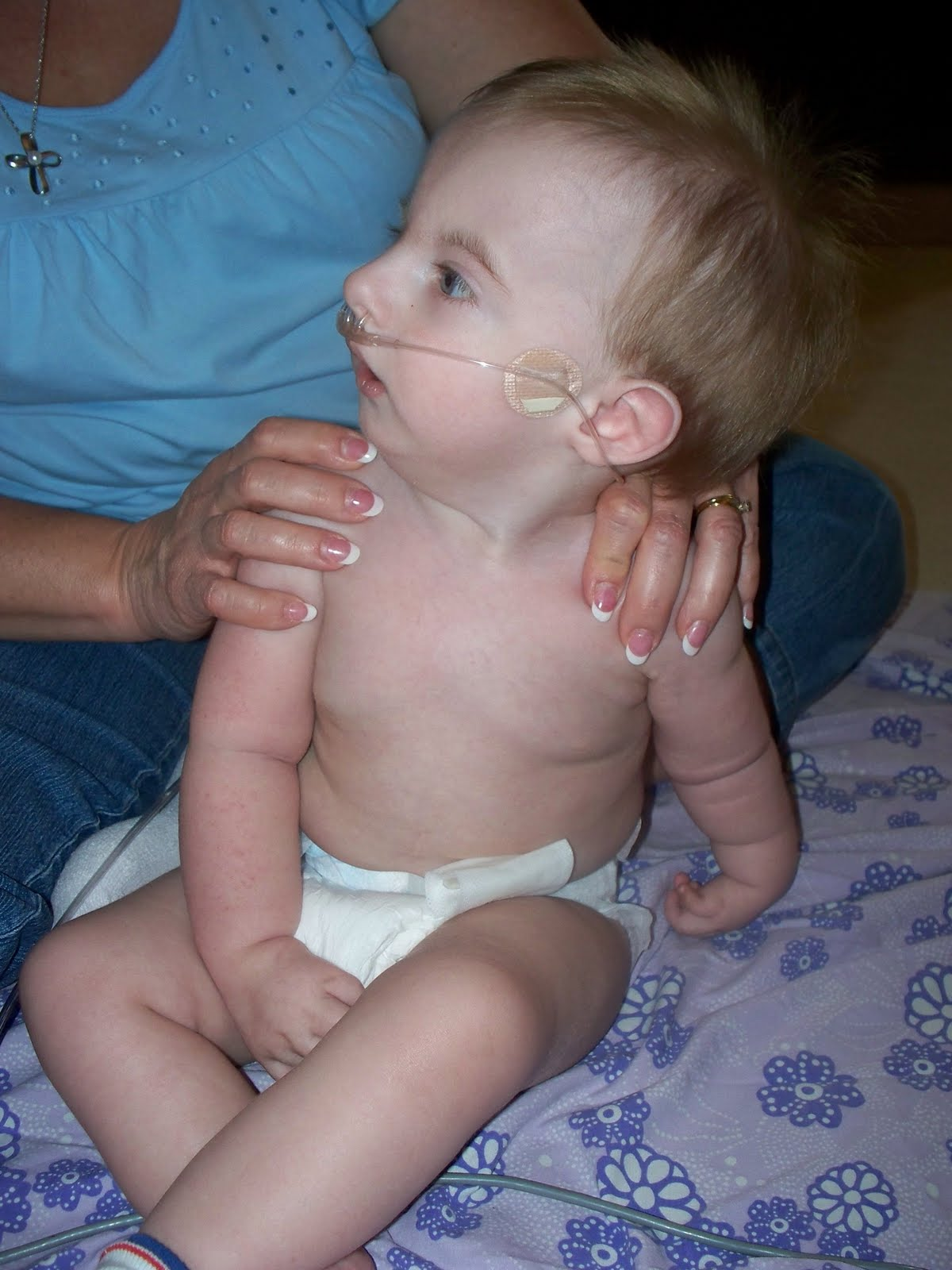 Trisomy Information About Trisomy
