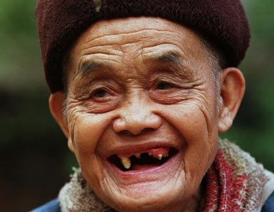 girls with no teeth