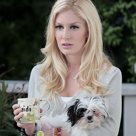 heidi montag before and after all surgery. hair heidi montag before and