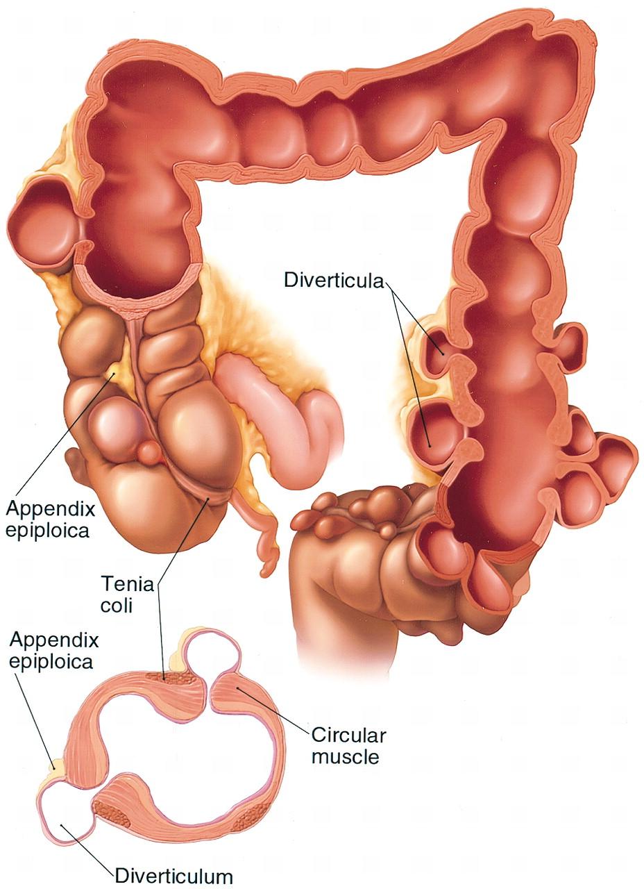 Appendicitis symptoms in men related to appendicitis