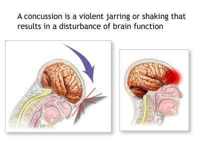 a report on brain damage causes and effects Violence as a cause of traumatic brain injury  however, these numbers may underestimate the extent of the problem as certain populations who are more likely to report ipv (prisoners, those living in shelters, transient people, and the homeless) are less likely to be surveyed  posted on brainline july 25, 2008.