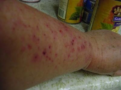 will prednisone cure a rash