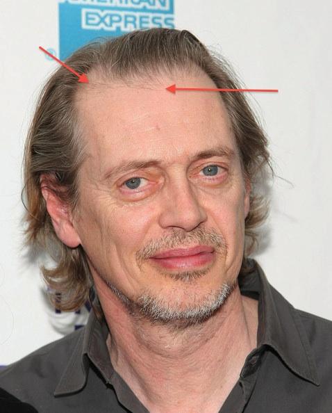 Ben Affleck Hair Transplant