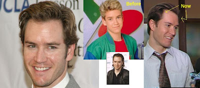 BaldCelebs.com: Mark-Paul Gosselaar