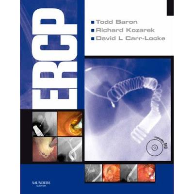 ERCP...ERCP Ercp