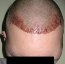 MY NEW HAIR LINE (2 DAYS POST)