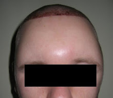 THE SWELLING (2 DAYS POST)
