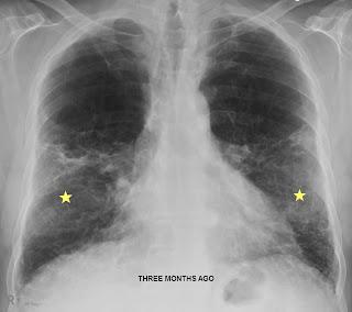 Pneumonia Natural Treatment For Bay Leaf