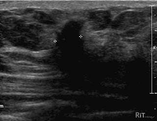 Breast ultrasound shadow