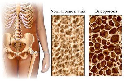 Osteoarthritis Hip Icd 9 Code | How To Reverse Osteoporosis