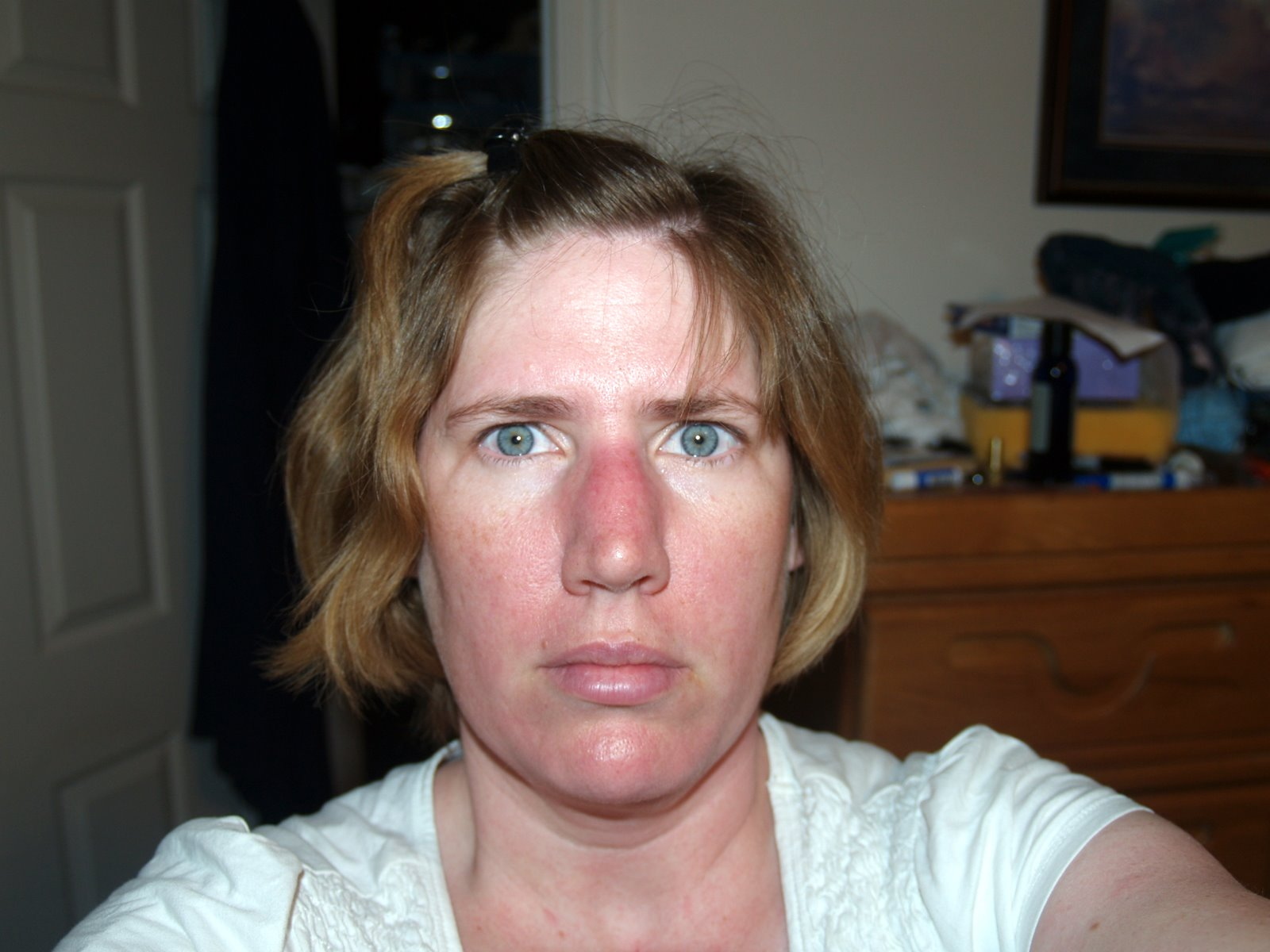 Has horrible dermatologists facial pictures Mmmmmm... wanna her
