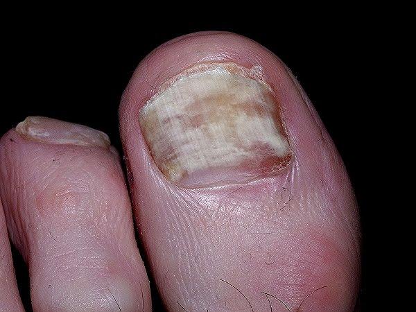 ... puedo eliminar los hongos en las unas de los pies? - HD Wallpapers