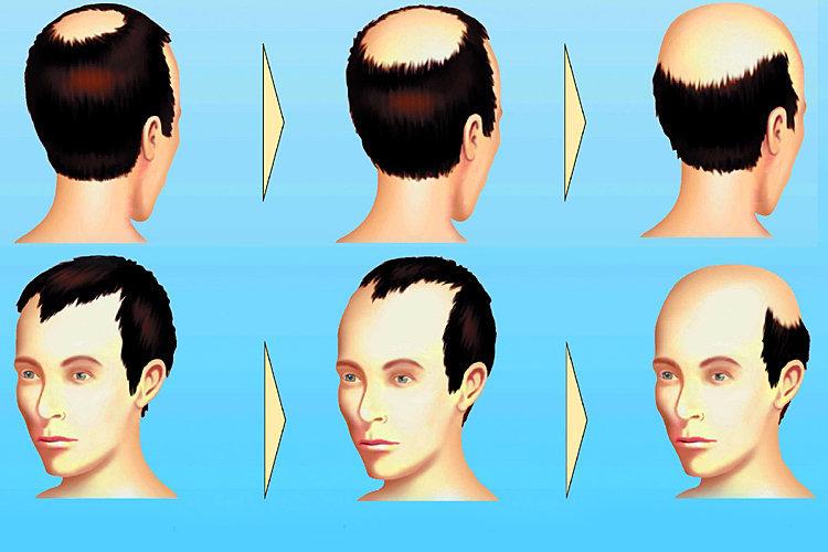 La alopecia la testosterona el tratamiento