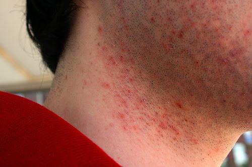 Elbow+fungus+rash