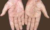 ahmet-maranki-egzama-tedavisi