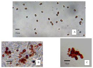 Imágenes ópticas microscópicas de las celulas rojas