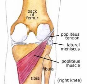 Popliteus Tendinitis Causes with Relief Tips  Pro Knee