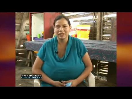 Gigantomastia Carol Ortiz