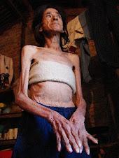 Son diez los muertos por desnutrición...