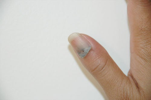 This is my life Ten Things I Learned After Slamming My Thumb in the Elantra Door & This is my life: Ten Things I Learned After Slamming My Thumb in the ...