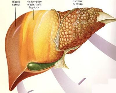 Salud c ncer de h gado for En k parte del cuerpo esta el higado