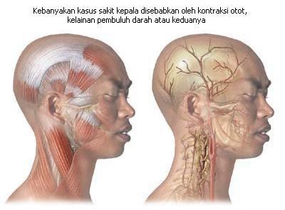 Sakit Kepala Sebelah, Sakit Kepala Belakang, Sakit Kepala Bagian Belakang, Sakit Kepala Sebelah Kiri, Sakit Kepala Terus Menerus, Sakit Kepala Sebelak kanan, Sakit Kepala Cluster, Sakit Kepala Migren, Sakit Kepala Pada Ibu Hamil