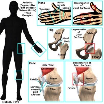 Artritis 'Memakan' Sendi