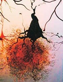 Alzheimer Penyebab Nyanyuk