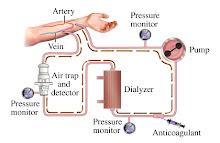 Akses Hemodialysis