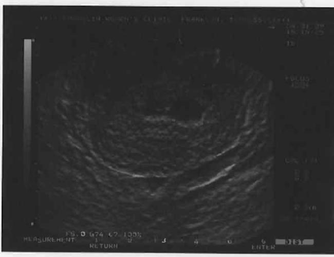 [Ultrasound+]