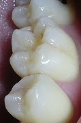 Infiltration Therapy for Minor Tooth Decay