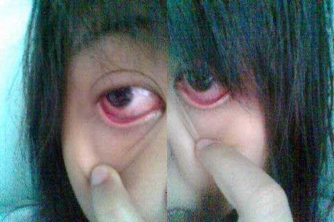 http://3.bp.blogspot.com/_gpu5ZnxHSLw/TDKpAM_-M5I/AAAAAAAAAOU/gn0VC1hHUNQ/s1600/sakit+mata.jpg