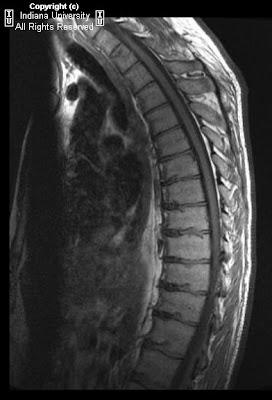 mild scheuermann's disease