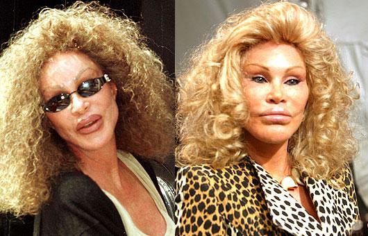 Is Karen Mulder starting to look like Jocelyn Wildenstein? Before or After