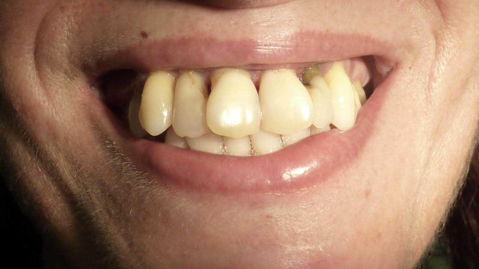 como blanquear los dientes y sacarle el sarro a los dientes!