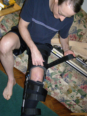 Meniscus Surgery Recovery Timeline