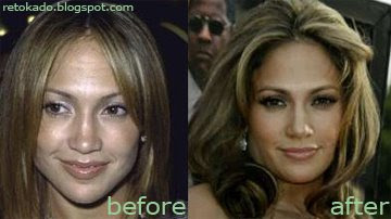 J Lo before and after photos (image hosted by dippedincream.com)