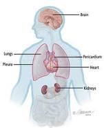 Organos afectados por lupus: